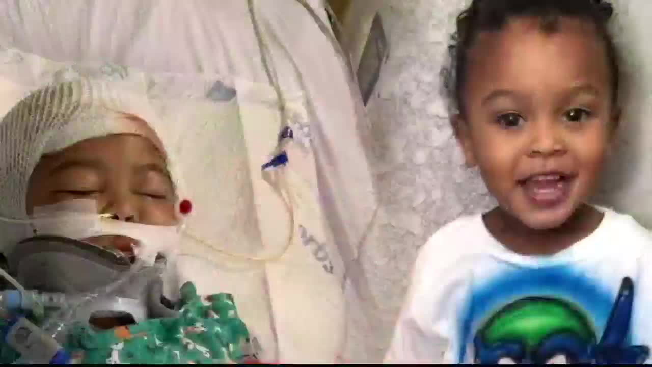 Toddler will need several surgeries after attack by family's
