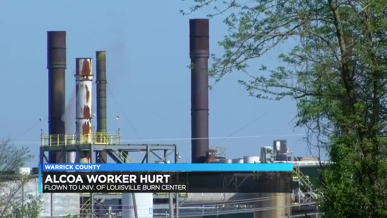 25-year-old taken to UofL Burn Center after Alcoa accident
